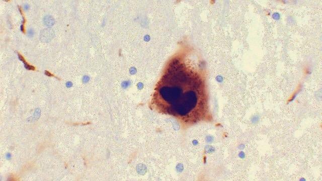 تحقیقات سلامت روده را به بیماری های تحلیل برنده عصبی مرتبط کرد!
