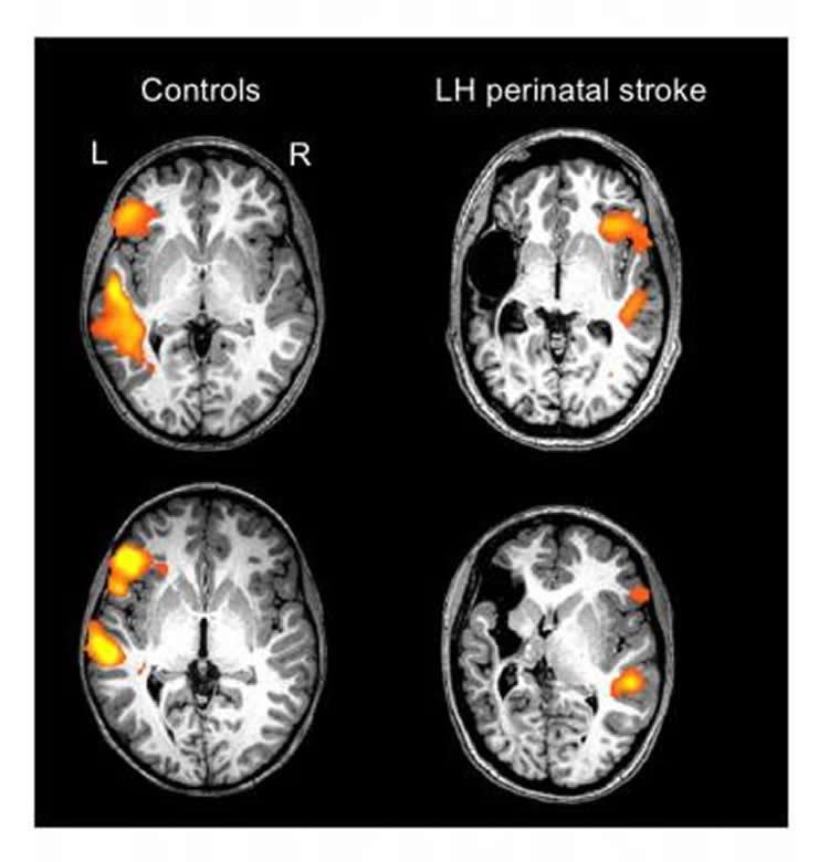 نوزادانی که دچار سکته مغزی شده اند عملکرد زبانی خود را در بخش مقابل مغز باز می یابند!