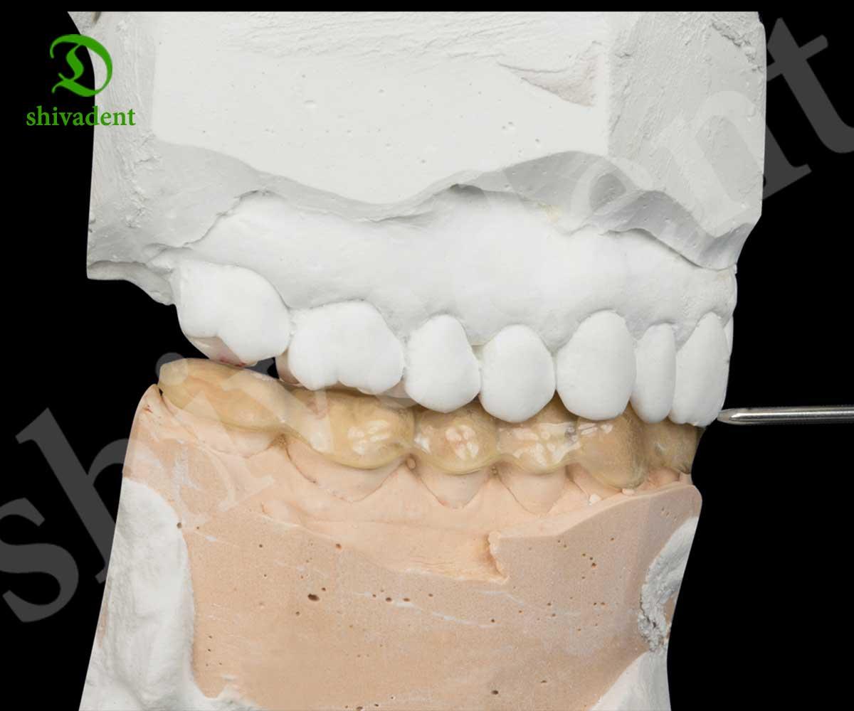 گچ سفید دندانسازی